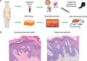 Modeling of prevalent skin diseases. (A) Humanized model of psoriasis based on intradermal injection in regenerated human skin of subpopulations of T-cells differentiated from a T 1 phenotype by the injection of TH17 type cytokines (IL-17 and IL-22) followed by mechanical removal or disruption of the stratum corneum by tape-stripping. (B) The model recapitulates the key phenotypic characteristics of the disease, such as elongation and fusion of the rete ridges, parakeratosis, increased vascularity, and dilated capillaries, among others (hematoxylin–eosin ×20). IL indicates interleukin.