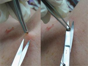 Scissors are used to make a tangential cut biopsy of a fibroma.