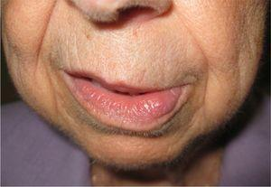 Soft edema in the lower left lip.