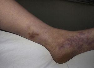 Nodules associated with livedo reticularis: cutaneous polyarteritis nodosa.