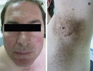 Trichodiscomas and fibrofolliculomas in a patient with Birt–Hogg–Dubé syndrome.