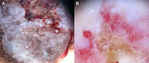 A, Superficial spreading melanoma, Clark level IV and Breslow depth of 3.12mm, showing marked vascular polymorphism in the thick portion of the tumor. B, Detail of a milky-red globule containing vessels.