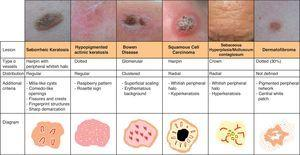 Vascular patterns in keratinizing tumors, sebaceous hyperplasia/molluscum contagiosum, and dermatofibroma.