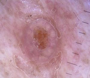 Crown vessels in a typical sebaceous hyperplasia lesion.