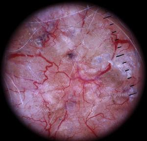 Bright red arborizing telangiectasias in sharp focus; a typical finding in basal cell carcinoma.