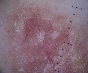 Dotted vessels combined with a scaling surface in a typical psoriatic plaque.