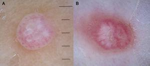 Crown vessels in 2 molluscum contagiosum lesions.