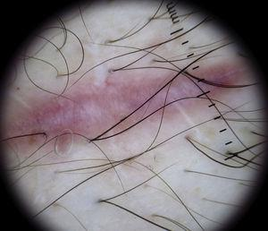 Dilated vessels in a string-like distribution in the center of a scar.