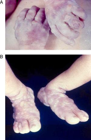 Large highly contagious blisters (syphilitic pemphigus) on the hands (A) and feet (B) of an infant with early congenital syphilis.