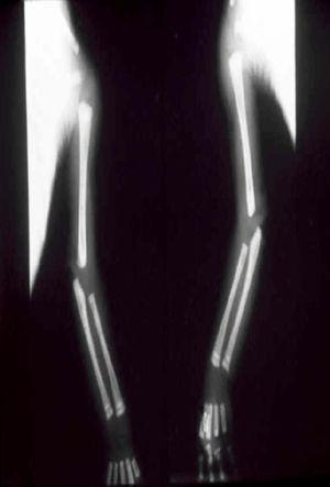 Radiographs showing osteolytic lesions in the proximal and distal metaphyses of the humerus, ulna, and radius bilaterally.