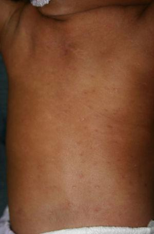 Disseminated erosive papules in an infant with congenital syphilis.