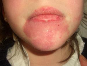 Capillary malformation (port-wine stain) on the chin.