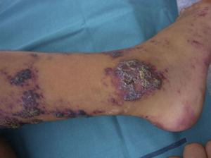 Verrucous hemangioma: a violaceous linear lesion on a leg, present since birth, with a considerable verrucous component.
