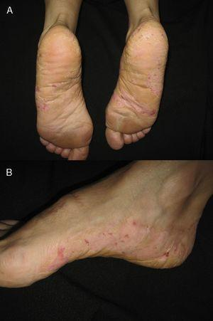A, Appearance of the eczema on the soles of the feet. B, Lateral view.
