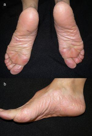 Complete resolution after 4 weeks of treatment with alitretinoin.