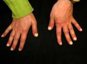 Complete whitening of all 10 nail plates on the hands.