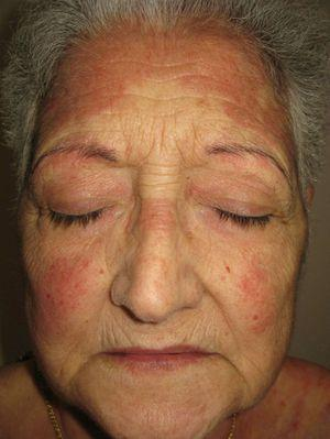 Yellow Skin Discoloration Induced by Quinacrine in a ...