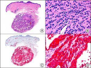 Cutaneous glomangioma. A, Low-power magnification (x10). B, High-power magnification of neoplastic cells around the vascular lumen, with round monomorphous nuclei and scant cytoplasm (×400). C, The same sample studied immunohistochemically with α-SMA (smooth muscle actin) (×10). D, Detail of α-SMA-positive neoplastic cells (×400).
