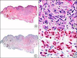 Desmoplastic melanoma. A, Low-power magnification (×10). B, Detail of neoplastic melanocytes in the reticular dermis (×400). C, The same sample studied immunohistochemically with SOX-10 (Sry-related HMG-BOX gene 10) (×10). D, Detail of SOX-10-positive nuclei in neoplastic melanocytes in the dermis (×400).