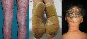Clinical features of lamellar ichthyosis. A, Brownish lamellar desquamation. B, Marked plantar hyperkeratosis. C, Scarring alopecia of the scalp.