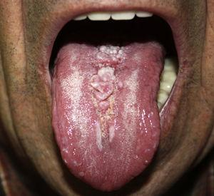 Lobulated, elastic, pink-colored lesion on the midline of the dorsum of the tongue.
