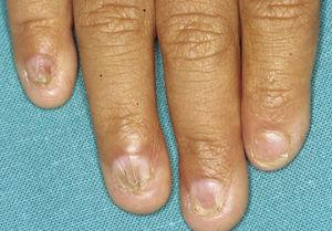 Fingernail abnormalities of varying severity in a patient with ankyloblepharon-ectodermal dysplasia-cleft lip/palate syndrome.