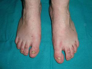 Hidrotic ectodermal dysplasia. Toenail dystrophy (courtesy of Dr. Isabel Febrer).