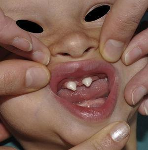 Hypohidrotic ectodermal dysplasia with dental agenesis and characteristic cone-shaped teeth.