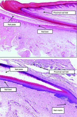 The nail apparatus. Histological appearance of the elements that make up the nail unit (hematoxylin-eosin, original magnification ×20).