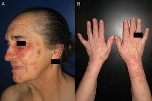 Lesions in sun-exposed areas in a patient with photodistributed erythema multiforme. Erythematous, edematous papules, several with a target-like morphology, in the facial region (A) and on the forearms (B).