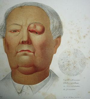 """Color lithograph from José Eugenio de Olavide's atlas of anatomy, showing an ulcerated, tuberous lesion on the upper eyelid treated by the surgeon Federico Rubio Galí. The fine lines drawn around the eye suggest the flap used to repair the defect. On the right is a rendering of the microscopic view of the histologic specimen prepared by Rubio Galí. It is described as """"embryonic tissue: epithelial cells in various stages of formation."""""""