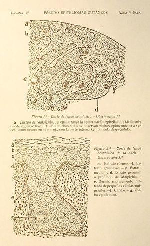 Page with figures in the monograph on pseudoepithelioma by Juan de Azúa and Claudio Sala Pons, illustrating this publication's most important contribution: pseudoepitheliomatous hyperplasia.