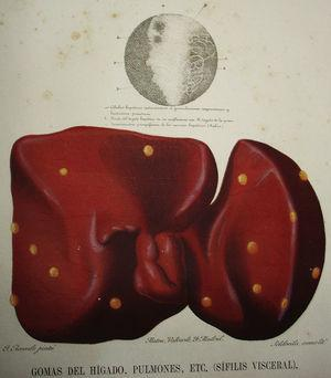 Detail of an illustration in José Eugenio de Olavide's atlas of anatomy, showing a liver with syphilitic gummas found in an autopsy performed by Federico Rubio Galí. The histologic section of the lesion is shown above the liver.