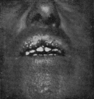 Cheilitis glandularis, with excretion from salivary ducts.