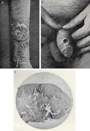 Chronic pyoderma. A, Vegetative pyoderma on the patient's forearm. B, Chancriform pyoderma. C, Photomicrograph of a chancriform pyoderma.
