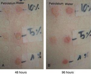 Appearance of the patch tests with different concentrations of PVP-I in petrolatum and water at 48 and 96 hours (Case 2).