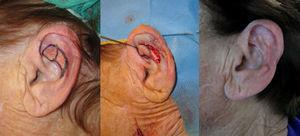 Chondrocutaneous subcutaneous pedicled V-Y flap with an inferior vertex in the scaphoid fossa.