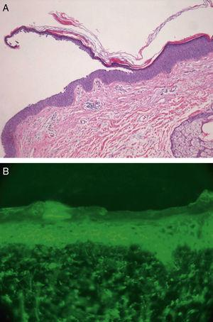 (a) Superficial acantholysis and hyperchromatic nuclei in the granular layer (hematoxylin–eosin, original magnification ×20) and (b) DIF at 40× magnification displaying segmental intercellular staining for IgG and C3.