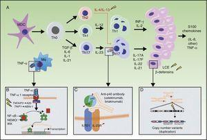 A, Main pathogenic pathways in psoriasis with genetic implications: the myeloid dendritic cells produce interleukin (IL)-12 and IL-23 after activation by different cytokines such as tumor necrosis factor (TNF)-α, interferon (IFN)-α, IFN-γ, and IL-6. Naïve T lymphocytes, in presence of tumor growth factor (TGF) β, IL-6, IL-1, and IL-21, differentiate into Th17 lymphocytes, which express the IL-23 receptor and proliferate in the presence of this cytokine. Th17 lymphocytes produce IL-17A, IL-17F, IL-22, and IL-21, which activate the keratinocytes in immunologic and proliferative terms, giving rise to the production of TNF-α, IL-1, IL-6, IL-8, S100A7, and other S100 proteins and antimicrobial peptides (β-defensins). A. The binding of TNF-α to its receptor activates a cascade of signals that give rise to the release of nuclear factor (NF)-κB from its inhibitory complex NFκB essential modulator/inhibitor of κB kinase (NEMO/IKK), leading to transcription of A20, a negative regulator of NFκB enhanced by the ABIN-1 protein. Psoriasis is associated with certain polymorphisms in the genes that encode these 2 inhibitory proteins. B. Inhibition of IL-23-mediated signaling is the mechanism of action of the p40 inhibiting monoclonal antibodies, such as ustekinumab. Psoriasis has also been associated with polymorphisms in the genes that encode the P19 and p40 subunits of IL-23 and IL-12/IL-23, respectively, as well as a subunit of the IL-23 receptor. C. An association has been reported between the CNVs of the LCE proteins and human β-defensins and psoriasis. Abbreviations: CNV, copy number variants; LCE, late cornified envelope; MDC, myeloid dendritic cells. Source: Adapted from Duffin et al.45