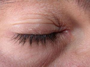 Mild allergic contact eczema of the eyelids after application of a cosmetic product.