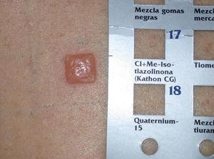 Strong positive reaction in the patch test with Kathon CG.