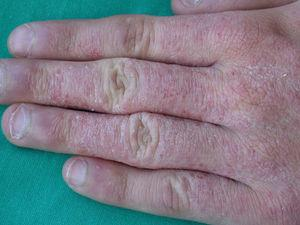 Allergic contact eczema of the hands caused by Kathon CG.