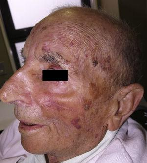 Eight weeks after surgery; the excellent functional and cosmetic result can be seen.