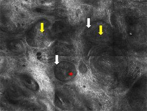 Confocal microscopy image measuring 1×0.75mm. Note the nests of cells (yellow arrow and separation between the stroma and the nests [white arrow]). Peripheral palisading (red asterisk) can be observed in some of the nests.