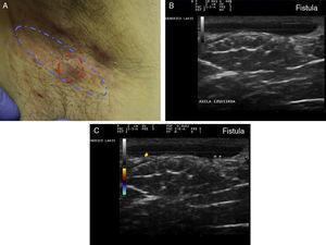 Hidradenitis suppurativa. A, Long erythematous lesion in the right armpit. The red circle shows the clinically evident area. The blue lines show the affected area as seen by ultrasound. B, Ultrasound image showing an underlying fistulous tract. C, Mild inflammatory activity evidenced by Doppler ultrasound.