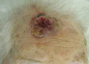 Large squamous cell carcinoma on the forehead.
