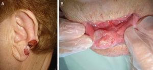 Squamous cell carcinomas in locations considered high risk. A, External ear tumor. B, Lower lip tumor.