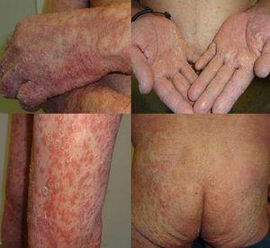 Detail of the generalization of the psoriasis lesions after the second cycle of pembrolizumab.