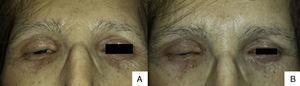 Erythema and infiltration of the 4 eyelids interfered with eye opening (A) and closure (B).