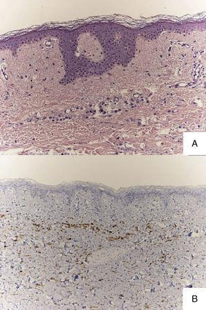 A, Histology showing a dermal infiltrate of cords of cells from a lobular breast adenocarcinoma. Hematoxylin and eosin, original magnification×20. B, Immunohistochemistry showing groups of cells positive for GCDFP-15, indicating an origin in breast tissue. Original magnification×20.